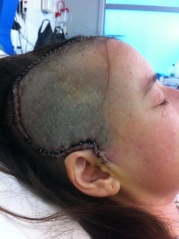 Lauren - about 4 days post TBI surgery
