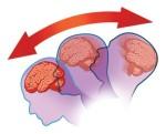 Concussed Brain