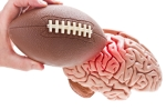 football-brain-injury