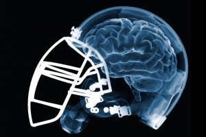 Brain in Helmet