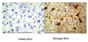 Healthy and Damaged Brain