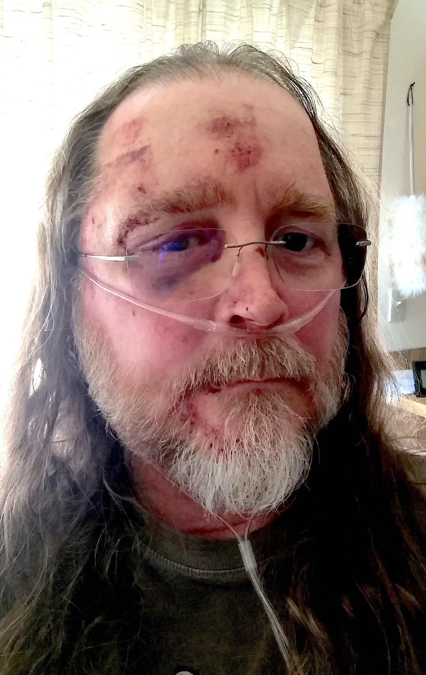 Rodney Rod Rawls Survivor 3